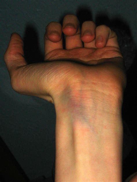 internal bruise wrist by mercy angel on deviantart