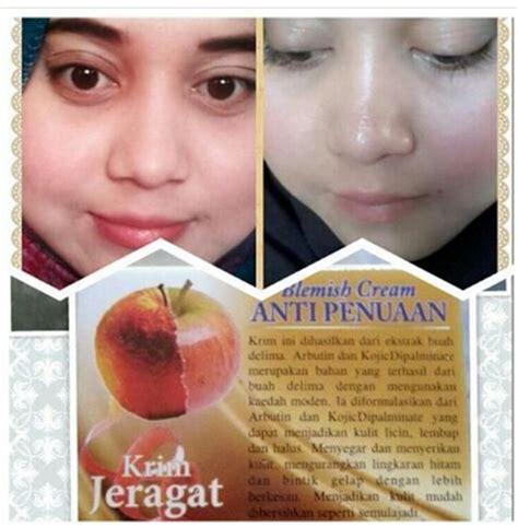 kegunaan hot gel nusantara gamat langkawi 017 2076411 trusted seller krim