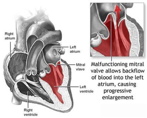 prolapse diagram mitral valve prolapse diagram for patients