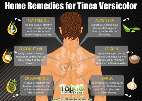 best treatment tinea versicolor home remedies for tinea versicolor top 10 home remedies