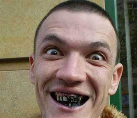 when do puppies teeth the worst worst teeth