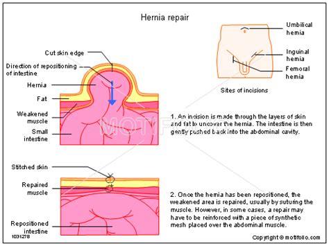 hernia diagram hernia repair illustrations