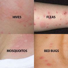 bed bug  mosquito bite comparisons  aid spider bites bed bug bites  bed bug bites