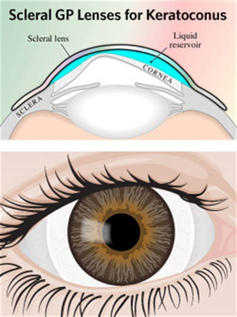 keratoconus, diagnosis, contact lenses and surgical therapy