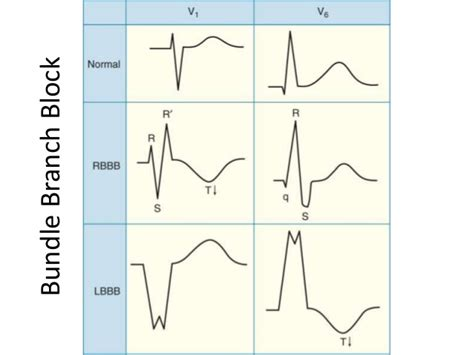 pattern rights meaning ecg lecture