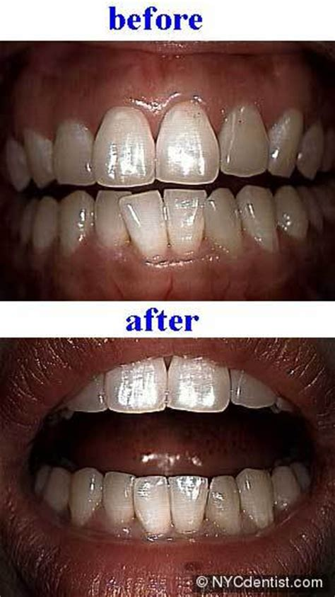 reshaping teeth  sculpting  improve smile aesthetics
