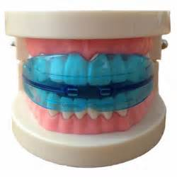 Orthodontic Retainer Teeth Trainer Alignment tooth alignment reviews shopping tooth alignment reviews on aliexpress alibaba