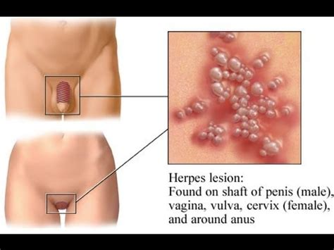 vigina hair removal pics can laser hair removal trigger herpes breakouts youtube
