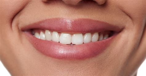 whiteners damage  teeth   york times