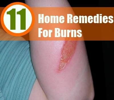 11 home remedies for burns treatments and cure