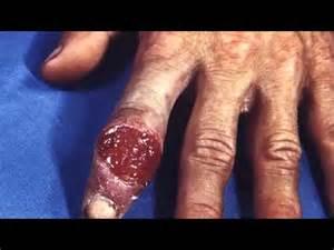 imagenes de un pene enfermo de sifilis s 237 ntomas tratamiento y prevenci 243 n de la sifilis youtube