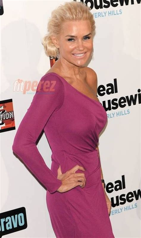 yolanda foster uses botox and fillers 140 best images about celebrity botox before after on