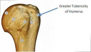 Greater Orthopaedics Orthopaedic Surgeon Mumbai Shoulder Replacement Surgeon