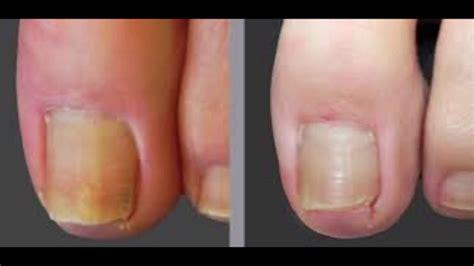 Japanese Toe Nail