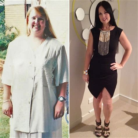 Weight Loss After Omentectomy