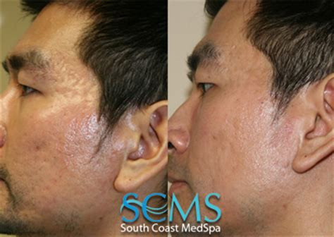 New Image Skin Care And Spa San Diego