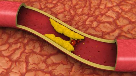 How To Detox Blood Vessels by Top 10 Foods To Clean Your Blood Vessels