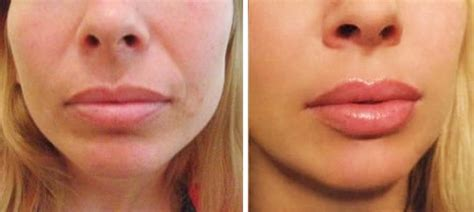 Lip Injections At Home by See Our Results