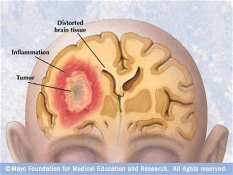 tumor symptoms brain tumors who s had them what the symptoms are and what the x rays look like