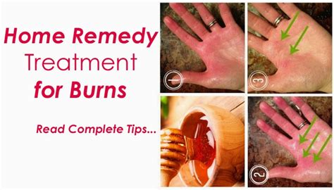 home remedy treatment for burns b g fashion