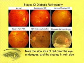 The Blind Spots Diabetic Retinopathy Group 7 Period 2 New 4