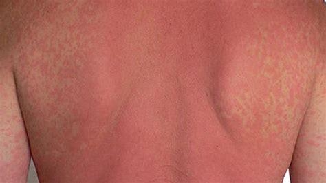 addisonian crisis addisonian crisis risks symptoms treatment