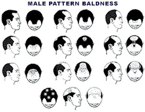 how male pattern baldness works πότε η τριχόπτωση προμηνύει τον καρκίνο pic patras