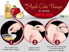 home remedies for moles top 10 home remedies