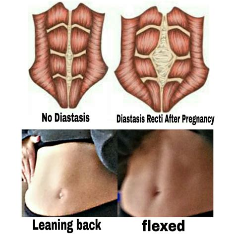 exercise 4 months after c section diastasis recti the protein princess