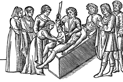 Caesarean Section Origin by File Birth Of The Julius Caesar Png Wikimedia Commons