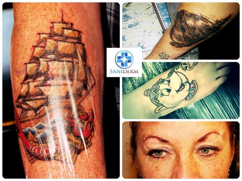 tattoo aftercare can you go swimming 777 best images about saniderm products on pinterest
