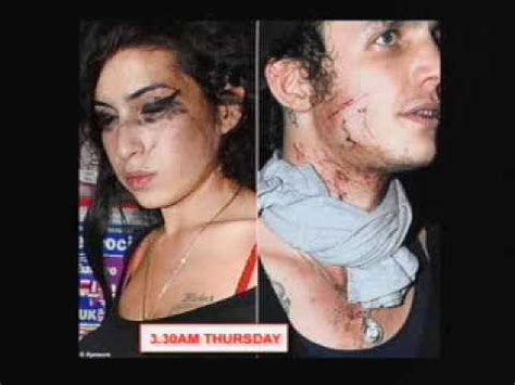 Bloodied And Bruised Winehouse Stands By Husband Who Saved by Bloody Attack By Winehouse