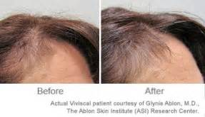 viviscal before and after hair length afro truths and myths about ketoconazole and hair loss