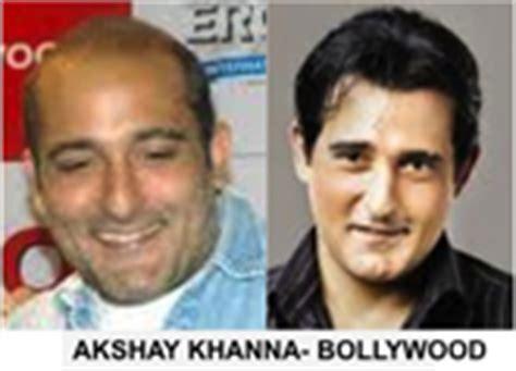 akshay khanna hair transplate dr bishan mahadevia s hair transplant clinic india