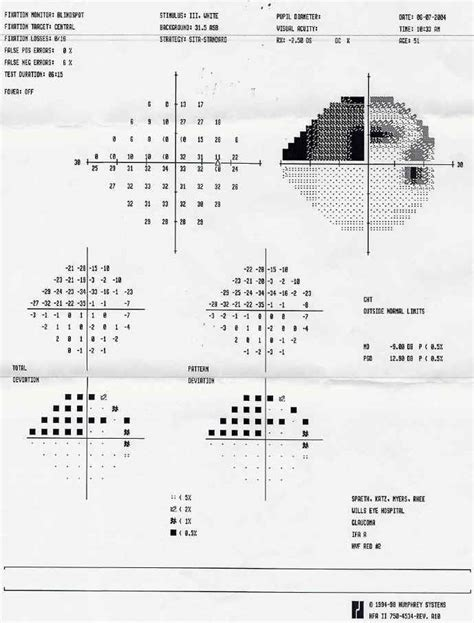 Major Area Field Test Mba by My Low Tension Glaucoma