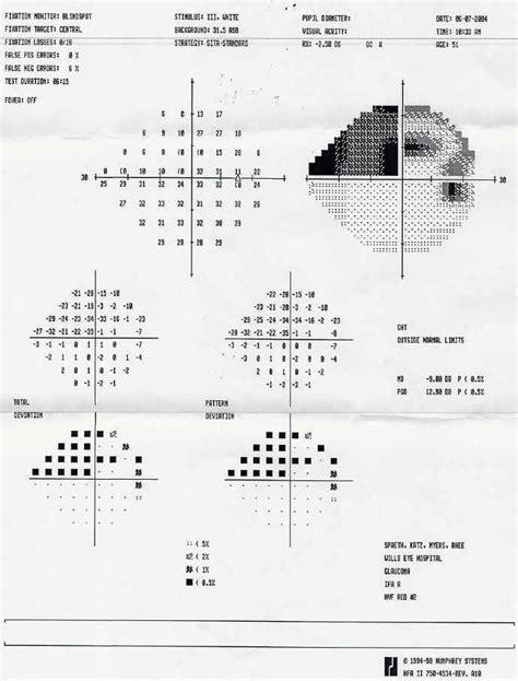 field test visual field test