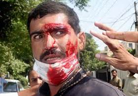 model town massacre 17 june 2014 minhaj ul quran