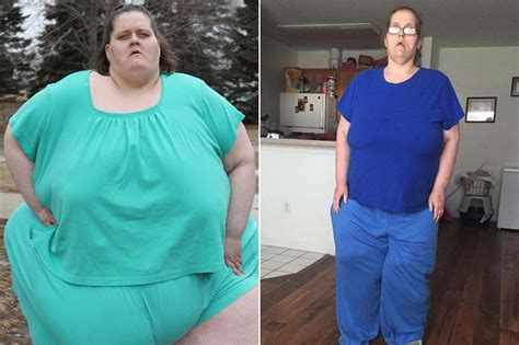 my 600 lb life why have gastric bypass surgery after losing a lot my 600 lb life weight loss transformations who lost 500