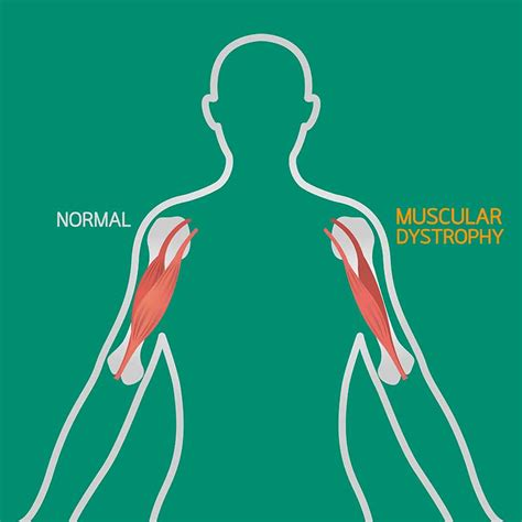muscular dystrophy treatment ayurvedic treatment  kerala