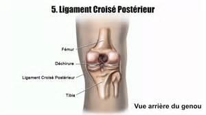 douleurs au genou les blessures les plus courantes du