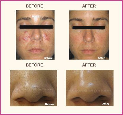 Pca Detox Gel Peel by Away From Breakouts With Pca Skin Amazing Products