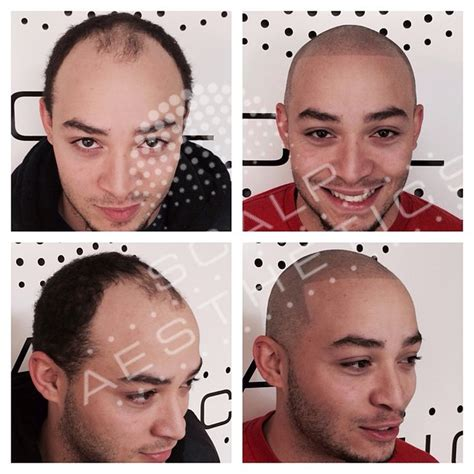 tattoo hair cost scalp micropigmentation the truth about smp scalp tattoo