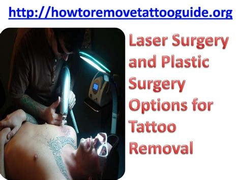 plastic surgery tattoo removal laser surgery and plastic surgery options for removal
