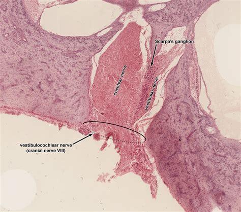 vestibular nerve section ear histology
