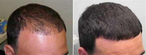 hair loss dermacure skin hair amp laser clinic