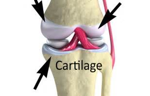Just what is cartilage anyway