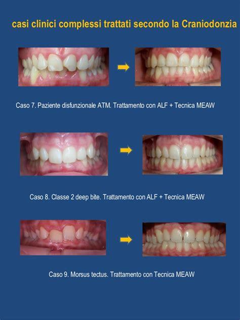 casi clinici craniodonzia casi clinici