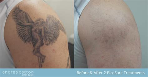 tattoo removal research picosure removal study 5