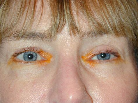 Mcgowans Droopy Eye Problem by Drooping Eyelid After Botox Pictures Hairsstyles Co