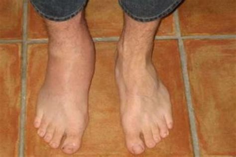arthritis swollen ankle pictures to pin on
